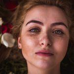 Przebarwienia – przyczyny i leczenie przebarwień